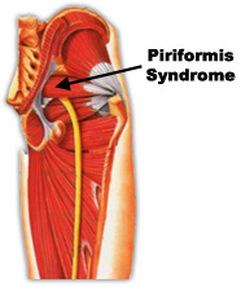 Piriformis Syndrome Gold Coast
